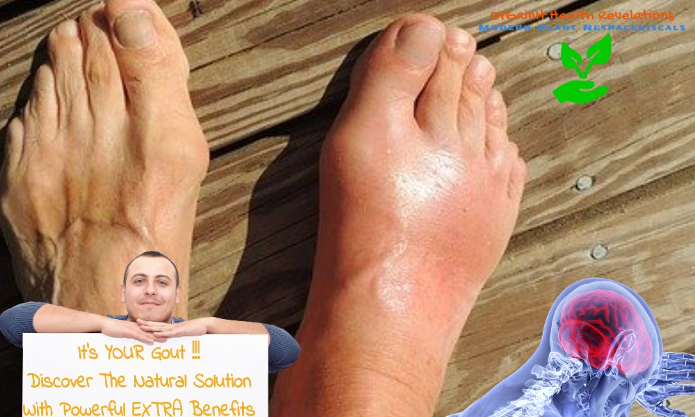 is turmeric curcumin good for gout? Yes Curcuminoids can cure gout