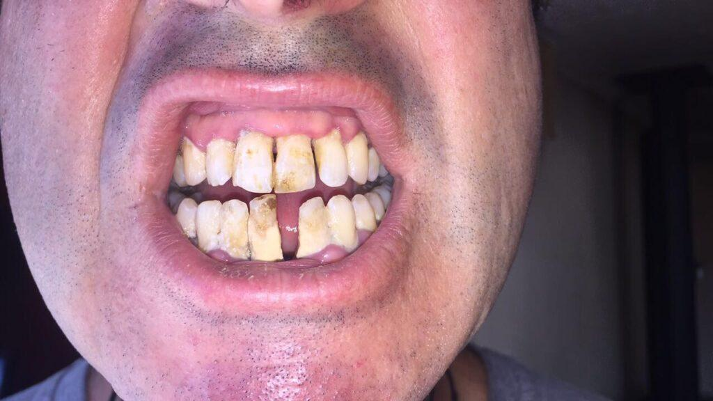 Robert mouth before turmeric and gum disease treatments